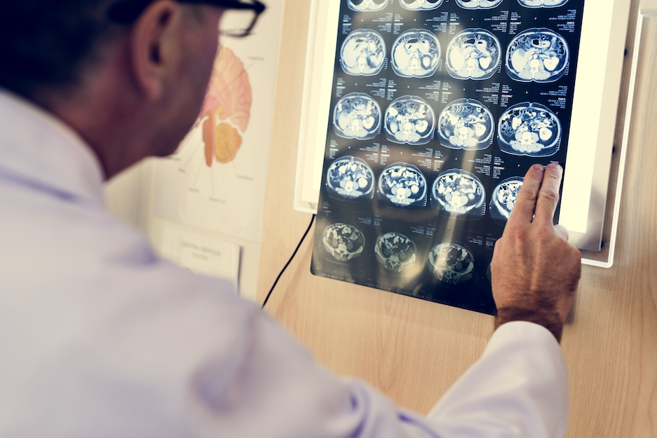 Origin - What is Alzheimer's Disease? Discoveries and Milestones